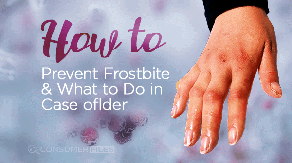 How to Prevent Frostbite & What to Do in Case Of
